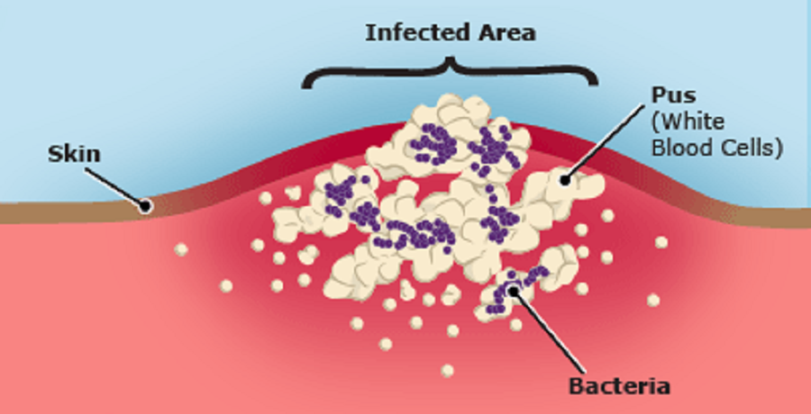 Infectious wound